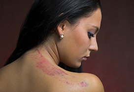 stock-photo-4823490-bruise-on-a-female-back-close-up